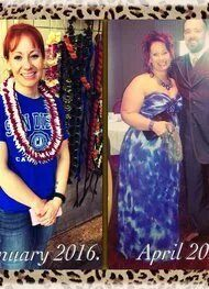 Gastric Sleeve before photo _ Robyn Duncan